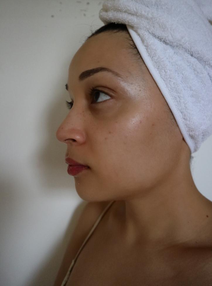 skin-2